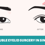 8 Clinics for the Best Double Eyelid Surgery in Singapore (2021)